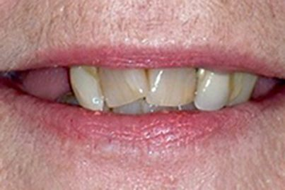 Closeup of damaged teeth