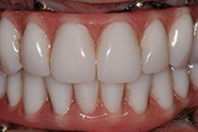 Closeup of healthy natural looking dental restoration