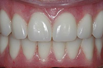 Closeup of healthy tooth replacement