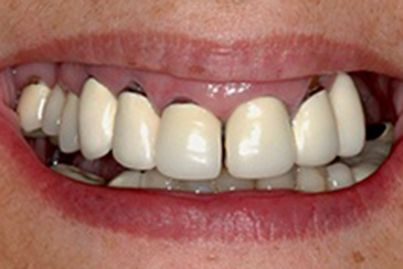 Closeup of smile with dark coloring at gum line