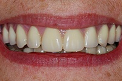 Closeup of white healthy smile