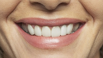 Closeup of healthy teethand gums