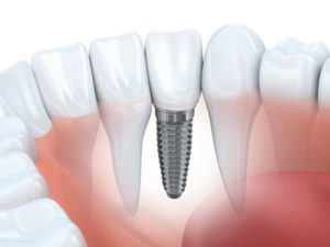 An illustration of a dental implant.