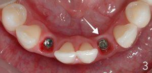 Pink gum tissue around implant.