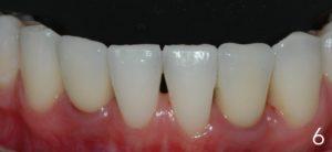 Bottom teeth and implants.
