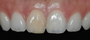 Discolored front tooth.