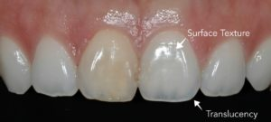 Discolored front tooth with surface texture.