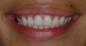 Smile after with veneer.