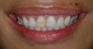Smile before with discoloration.