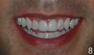 final result smile