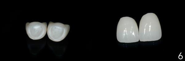 teeth side by side