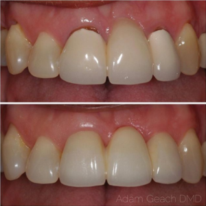 Before and after a zirconia bridge