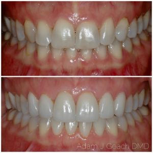 close-up of teeth with porcelain veneers and contoured gums